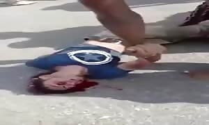 Biker hits car and gets his head distorted